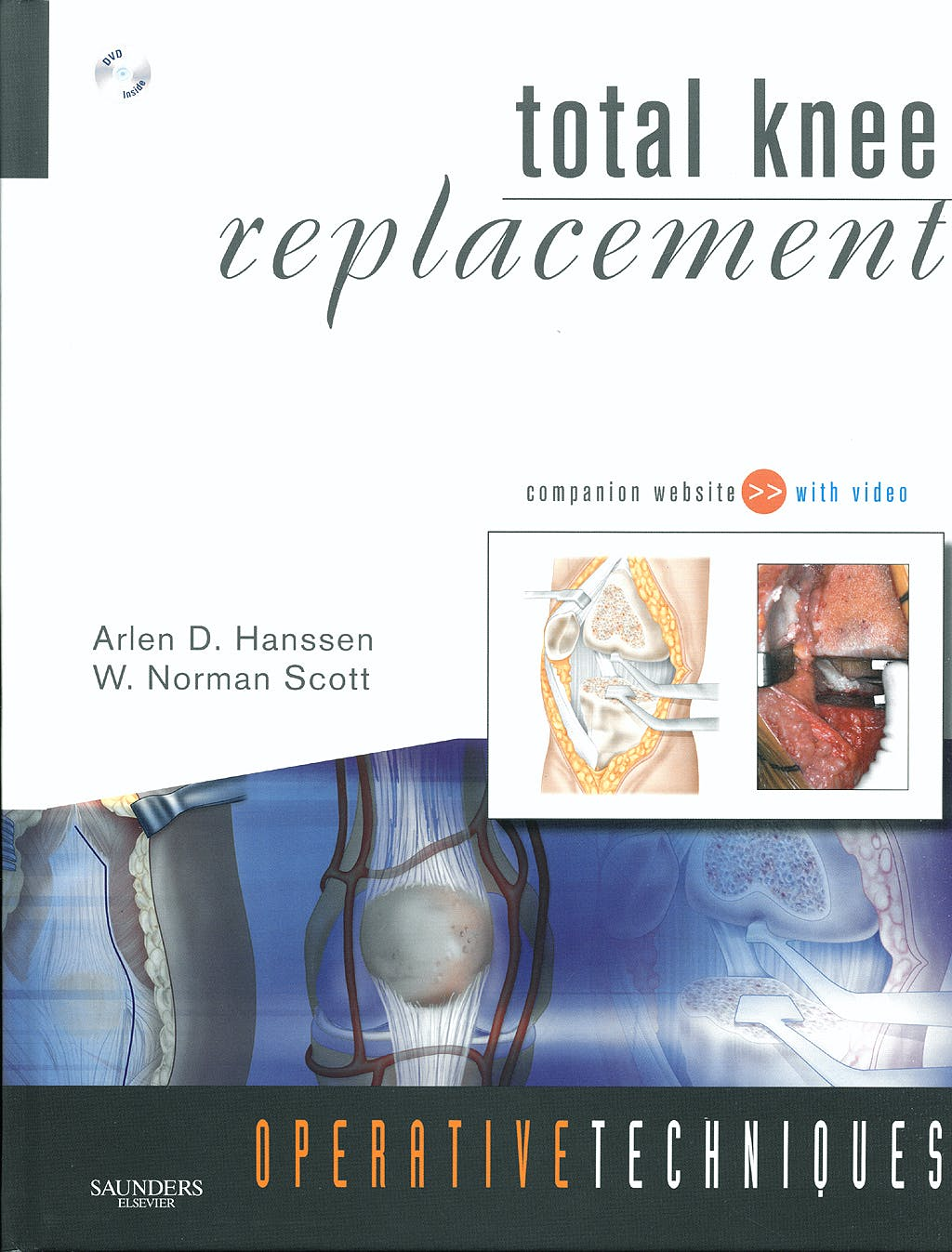Portada del libro 9781416049845 Total Knee Replacement. Operative Techniques + Dvd