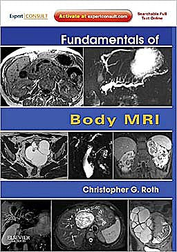 Portada del libro 9781416051831 Fundamentals of Body Mri (Online and Print)