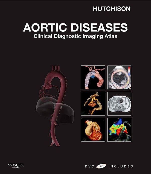 Portada del libro 9781416052708 Aortic Diseases. Clinical Diagnostic Imaging Atlas + Dvd