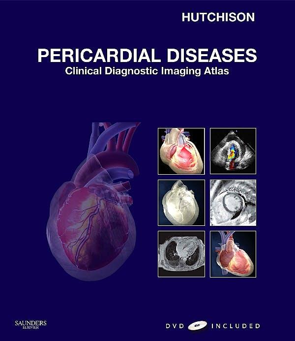 Portada del libro 9781416052746 Pericardial Diseases. Clinical Diagnostic Imaging Atlas + Dvd