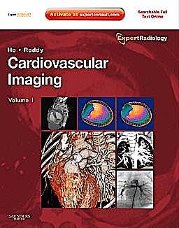 Portada del libro 9781416053354 Cardiovascular Imaging, 2 Volume Set (Online and Print)