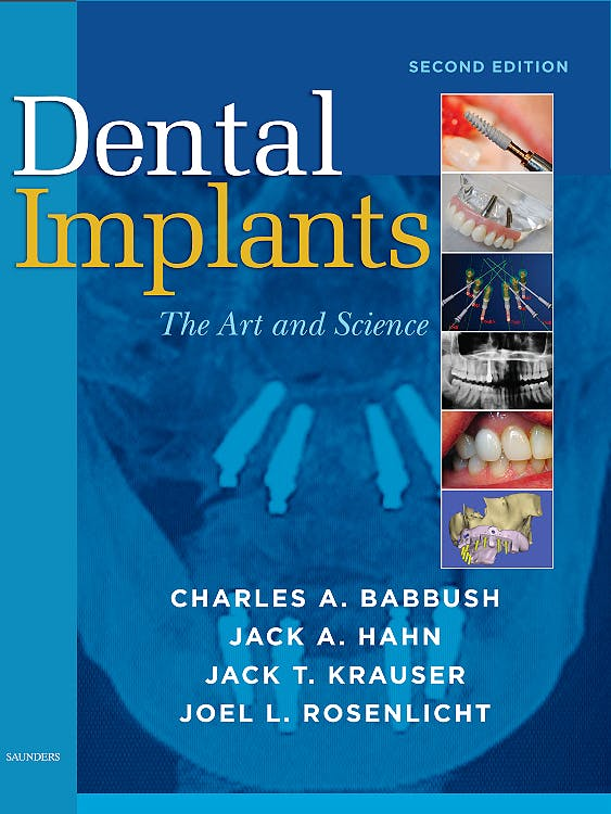 Portada del libro 9781416053415 Dental Implants. the Art and Science