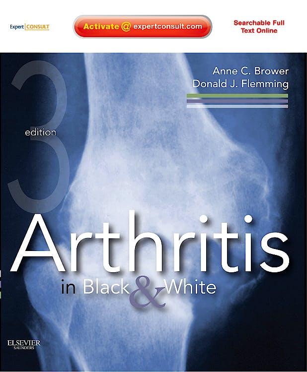 Portada del libro 9781416055952 Arthritis in Black and White (Online and Print)