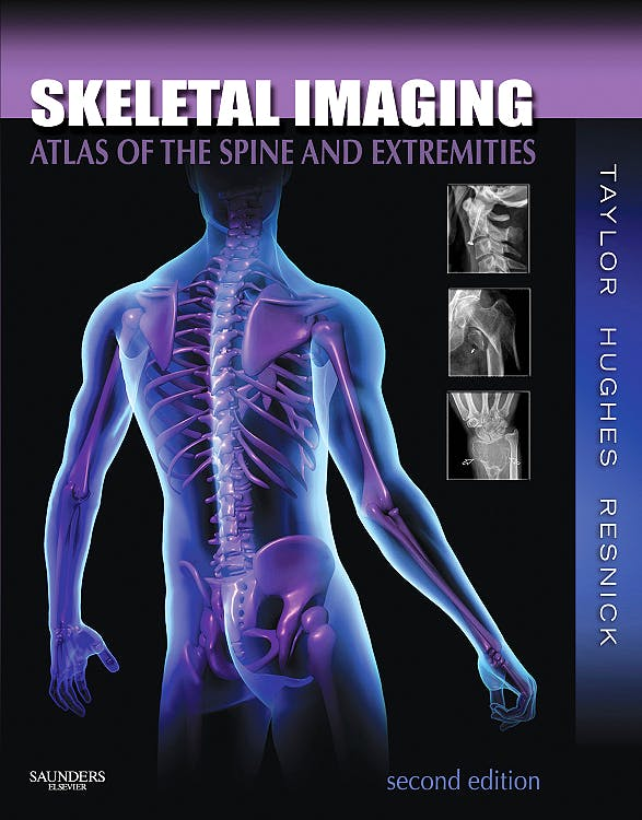 Portada del libro 9781416056232 Skeletal Imaging. Atlas of the Spine and Extremities