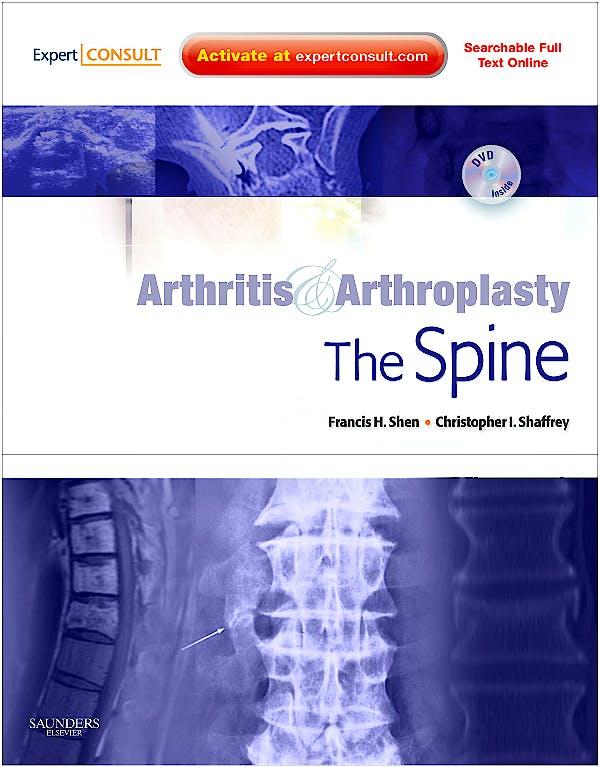 Portada del libro 9781416056430 Arthritis and Arthroplasty. the Spine + Dvd