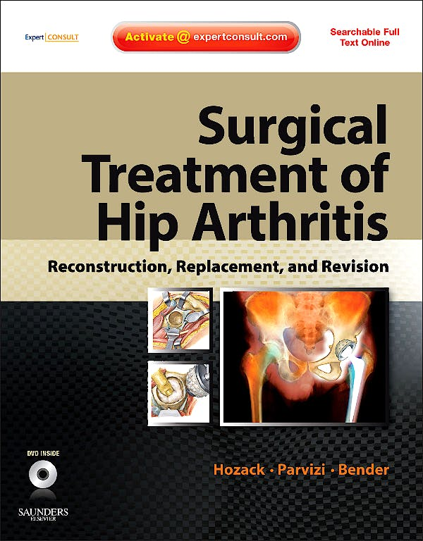 Portada del libro 9781416058984 Surgical Treatment of Hip Arthritis. Reconstruction, Replacement, and Revision + Dvd (Online and Print)
