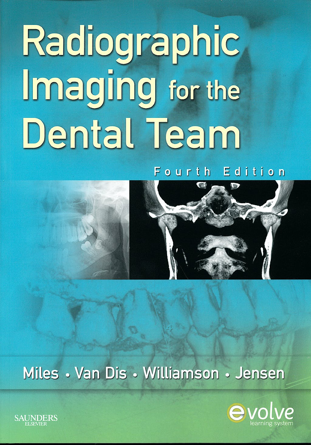 Portada del libro 9781416060048 Radiographic Imaging for the Dental Team