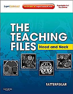 Portada del libro 9781416060598 The Teaching Files. Head and Neck Imaging (Online and Print)