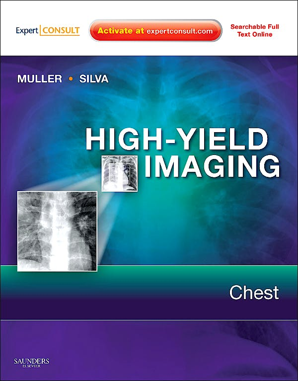 Portada del libro 9781416061618 High-Yield Imaging. Chest