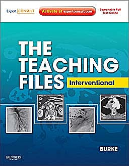 Portada del libro 9781416062608 The Teaching Files. Interventional