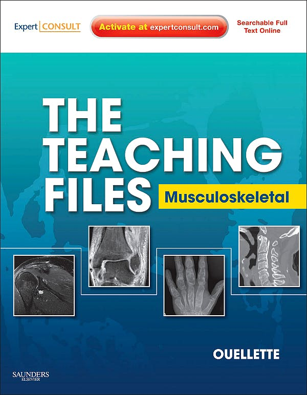 Portada del libro 9781416062615 The Teaching Files. Musculoskeletal