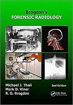 Portada del libro 9781420075625 Brogdon's Forensic Radiology