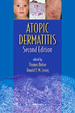 Portada del libro 9781420077988 Atopic Dermatitis