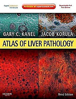 Portada del libro 9781437707656 Atlas of Liver Pathology (Online and Print)
