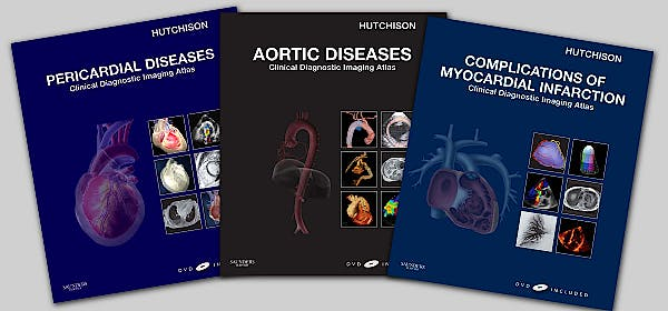 Portada del libro 9781437708516 Aortic Diseases, Pericardial Diseases and Complications of Myocardial Infarction - Package 3 Vols + Dvd