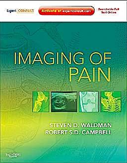 Portada del libro 9781437709063 Imaging of Pain (Online and Print)