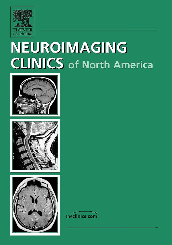 Portada del libro 9781437712421 Imaging of Movement Disorders, an Issue of Neuroimaging Clinics Volume 20-1