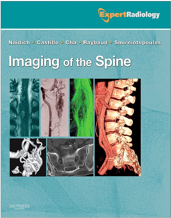 Portada del libro 9781437715514 Imaging of the Spine. Expert Radiology (Online and Print)