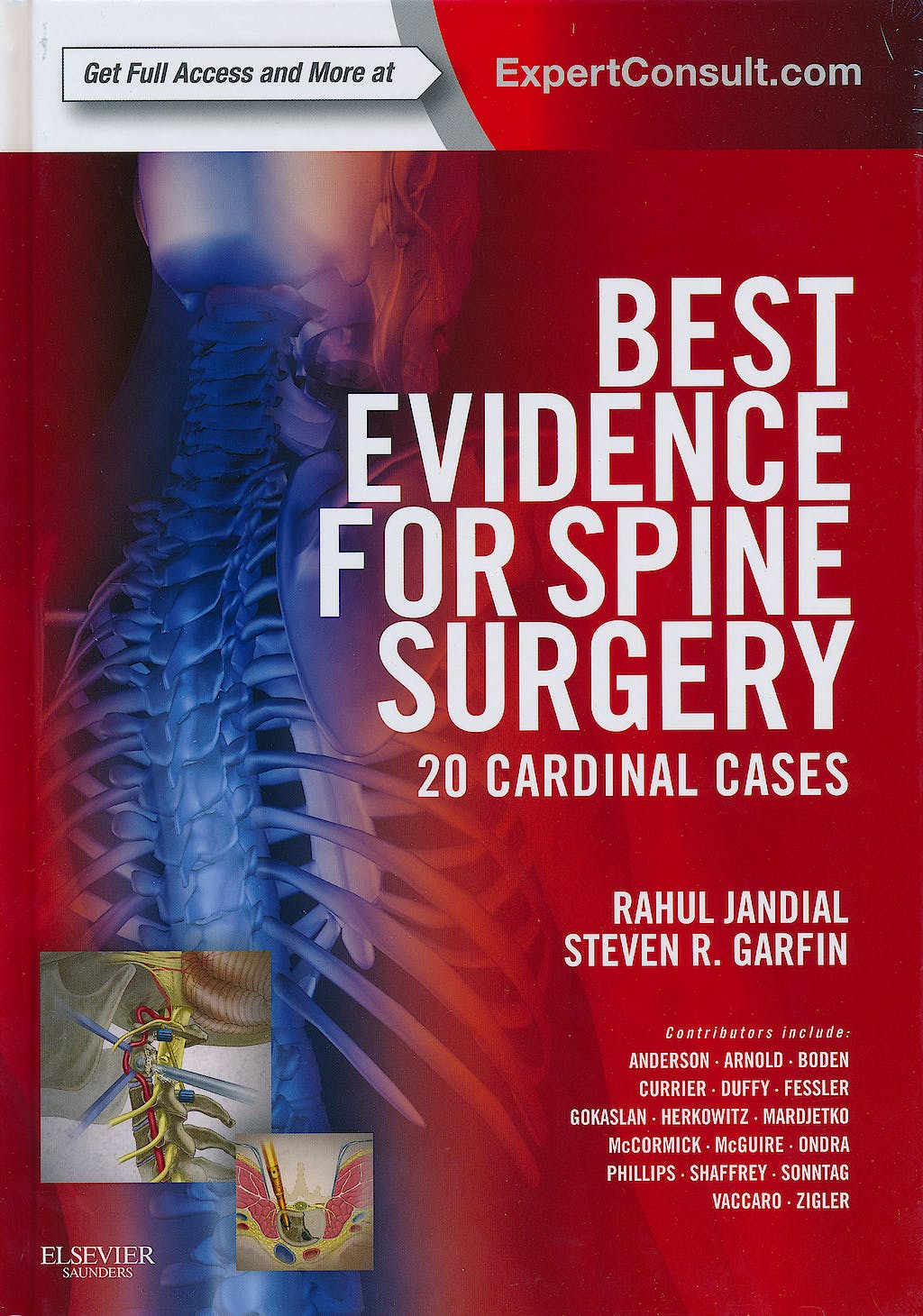 Portada del libro 9781437716252 Best Evidence for Spine Surgery. 20 Cardinal Cases (Online and Print)