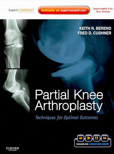 Portada del libro 9781437717563 Partial Knee Arthroplasty. Techniques for Optimal Outcomes + Dvd (Online and Print)