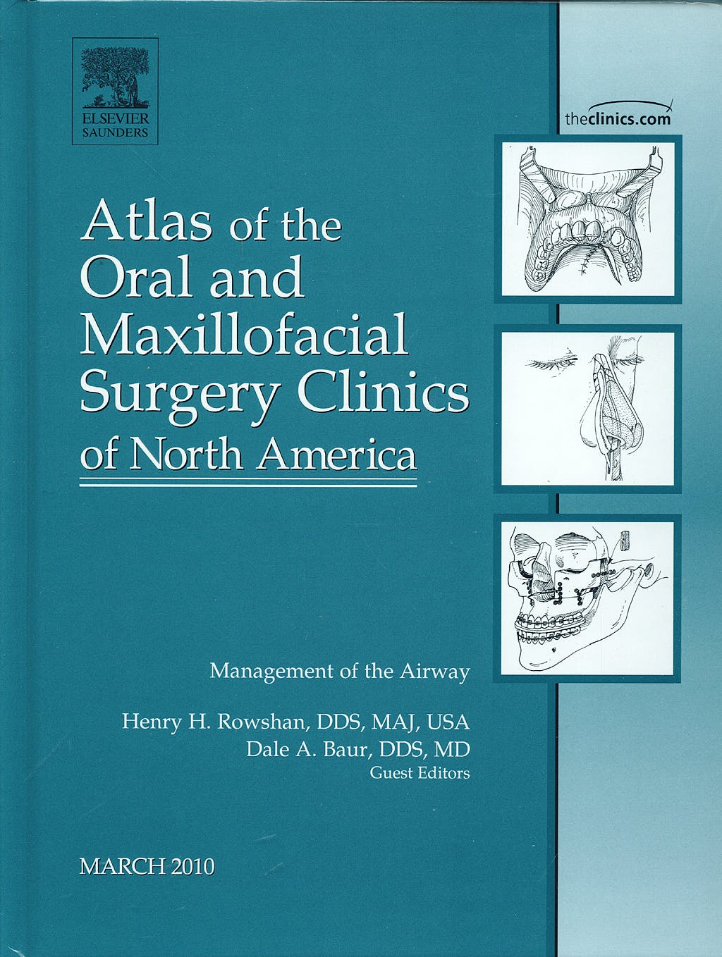 Portada del libro 9781437717976 Management of the Airway, an Issue of Atlas of the Oral and Maxillofacial Surgery Clinics, Vol. 18-1