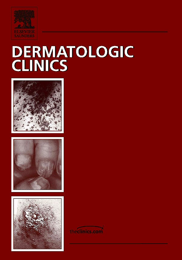 Portada del libro 9781437718126 Epidermolysis Bullosa, Part I: Pathogenesis and Clinical Features, an Issue of Dermatologic Clinics, Vol. 28-1