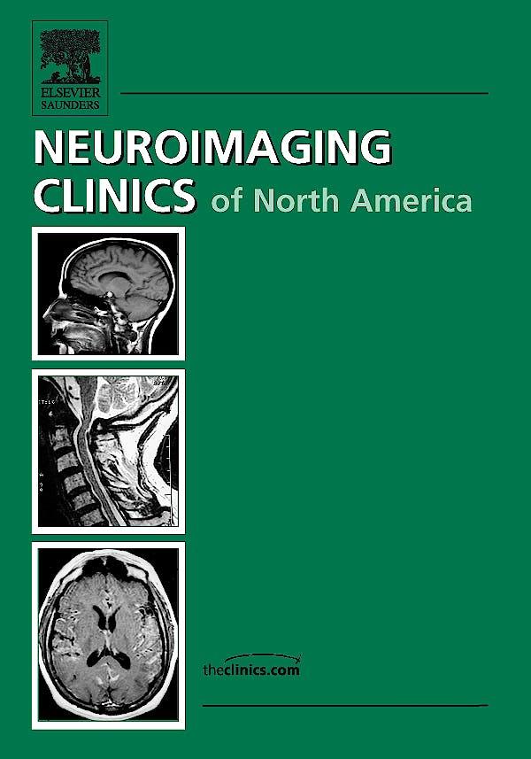 Portada del libro 9781437718379 Neuroimaging Clinics of n.a., Vol. 19/4: Advanced Imaging Techniques in Brain Tumors