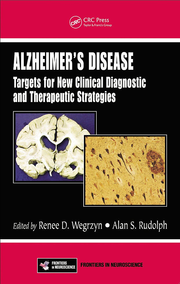 Portada del libro 9781439827086 Alzheimer's Disease. Targets for New Clinical Diagnostic and Therapeutic Strategies
