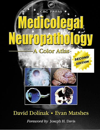 Portada del libro 9781439861530 Medicolegal Neuropathology. A Color Atlas