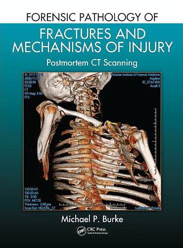 Portada del libro 9781439881484 Forensic Pathology of Fractures and Mechanisms of Injury. Postmortem Ct Scanning