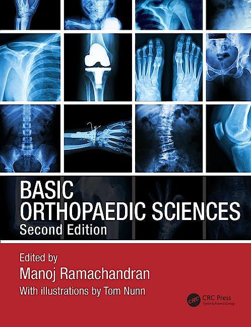 Portada del libro 9781444120981 Basic Orthopaedic Sciences