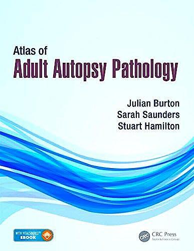 Portada del libro 9781444137521 Atlas of Adult Autopsy Pathology (Book + E-Book)