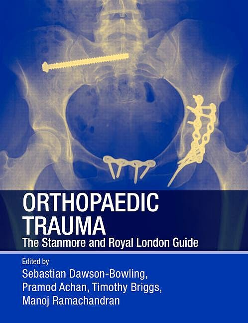 Portada del libro 9781444148824 Orthopaedic Trauma: The Stanmore and Royal London Guide