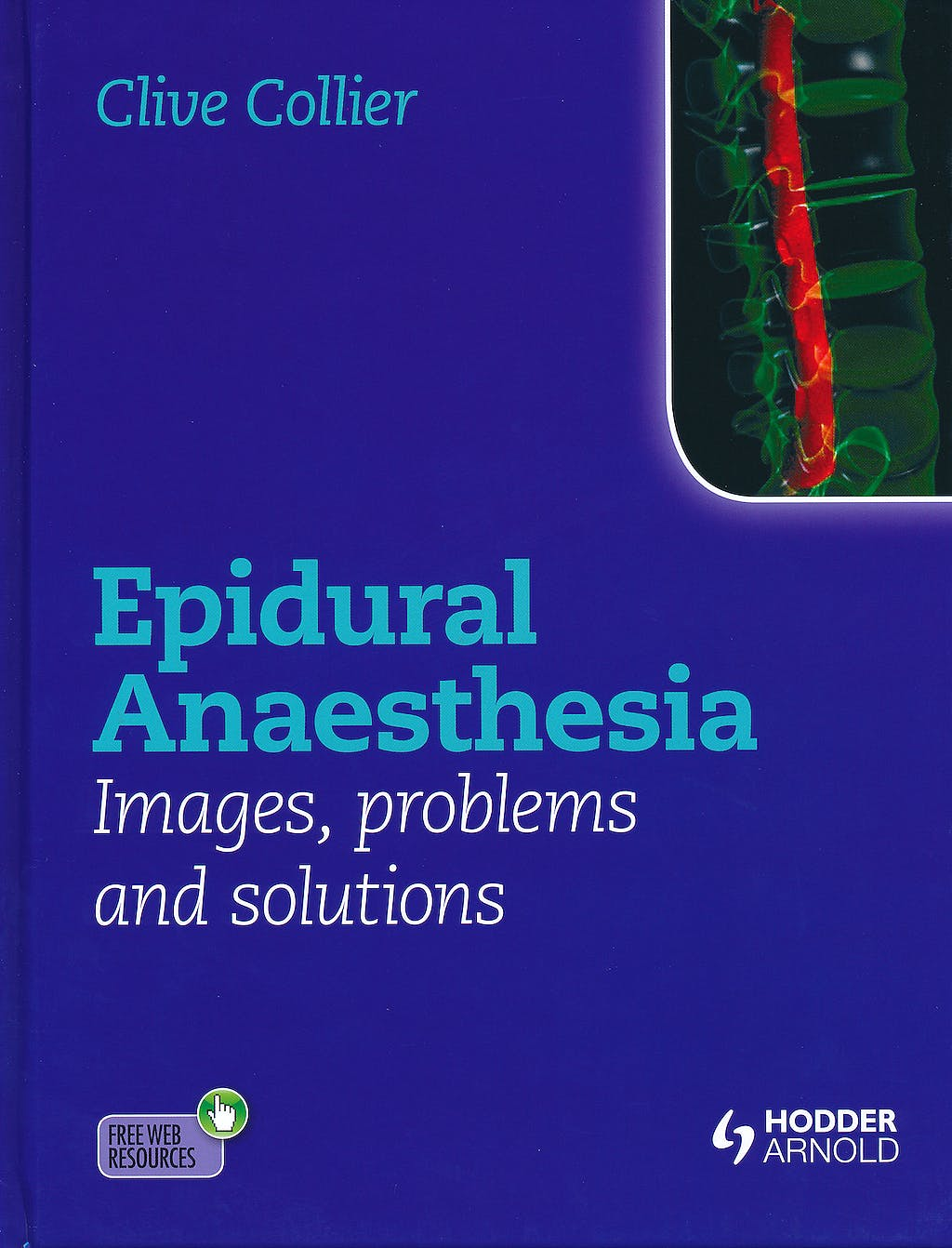 Portada del libro 9781444156041 Epidural Anaesthesia. Images, Problems and Solutions