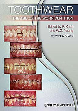 Portada del libro 9781444336559 Toothwear. the Abc of the Worn Dentition
