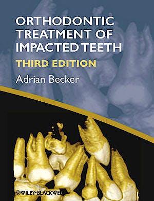 Portada del libro 9781444336757 Orthodontic Treatment of Impacted Teeth