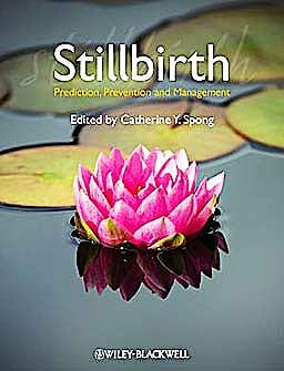 Portada del libro 9781444337068 Stillbirth. Prediction, Prevention and Management