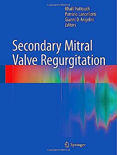 Portada del libro 9781447164876 Secondary Mitral Valve Regurgitation