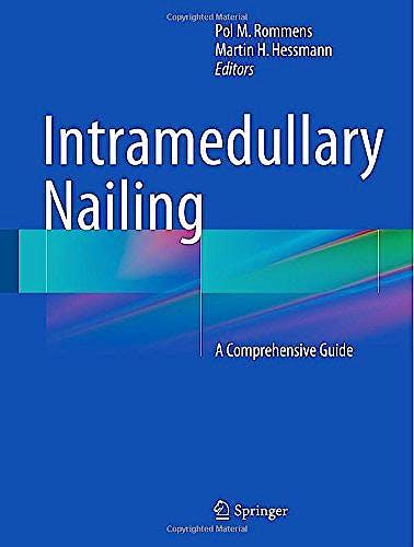 Portada del libro 9781447166115 Intramedullary Nailing. a Comprehensive Guide