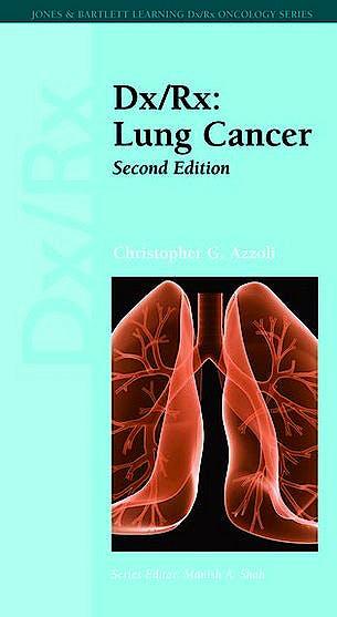 Portada del libro 9781449600396 Dx/rx: Lung Cancer