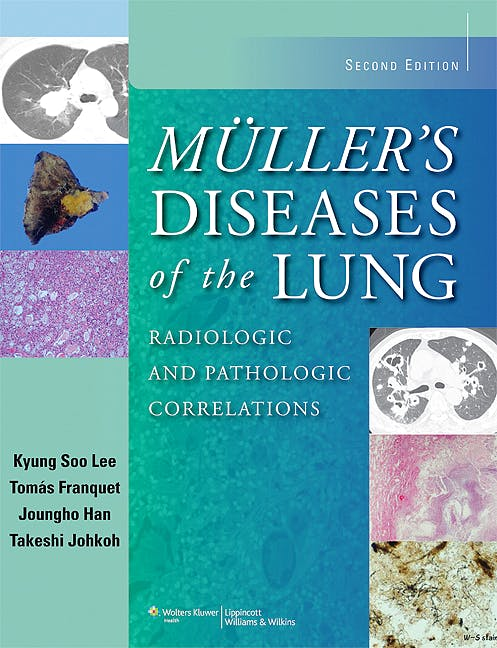 Portada del libro 9781451111163 Muller's Diseases of the Lung. Radiologic and Pathologic Correlations (Online and Print)