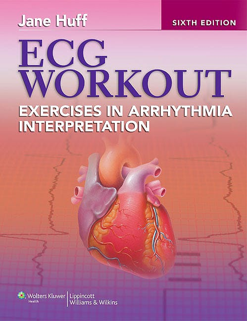 Portada del libro 9781451115536 Ecg Workout, Exercises in Arrhythmia Interpretation