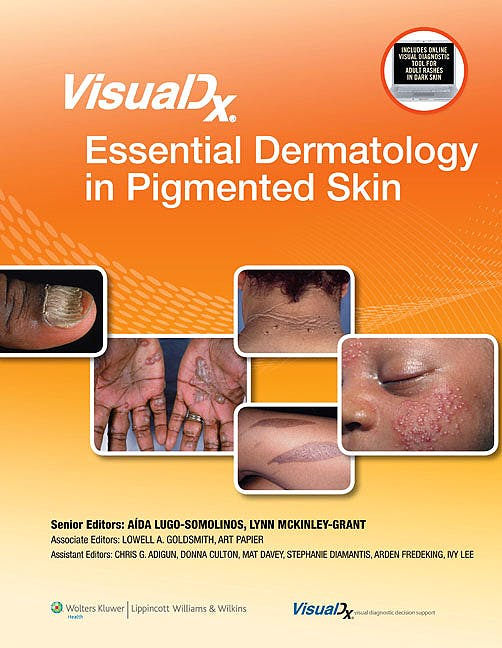 Portada del libro 9781451116052 Visualdx: Essential Dermatology in Pigmented Skin