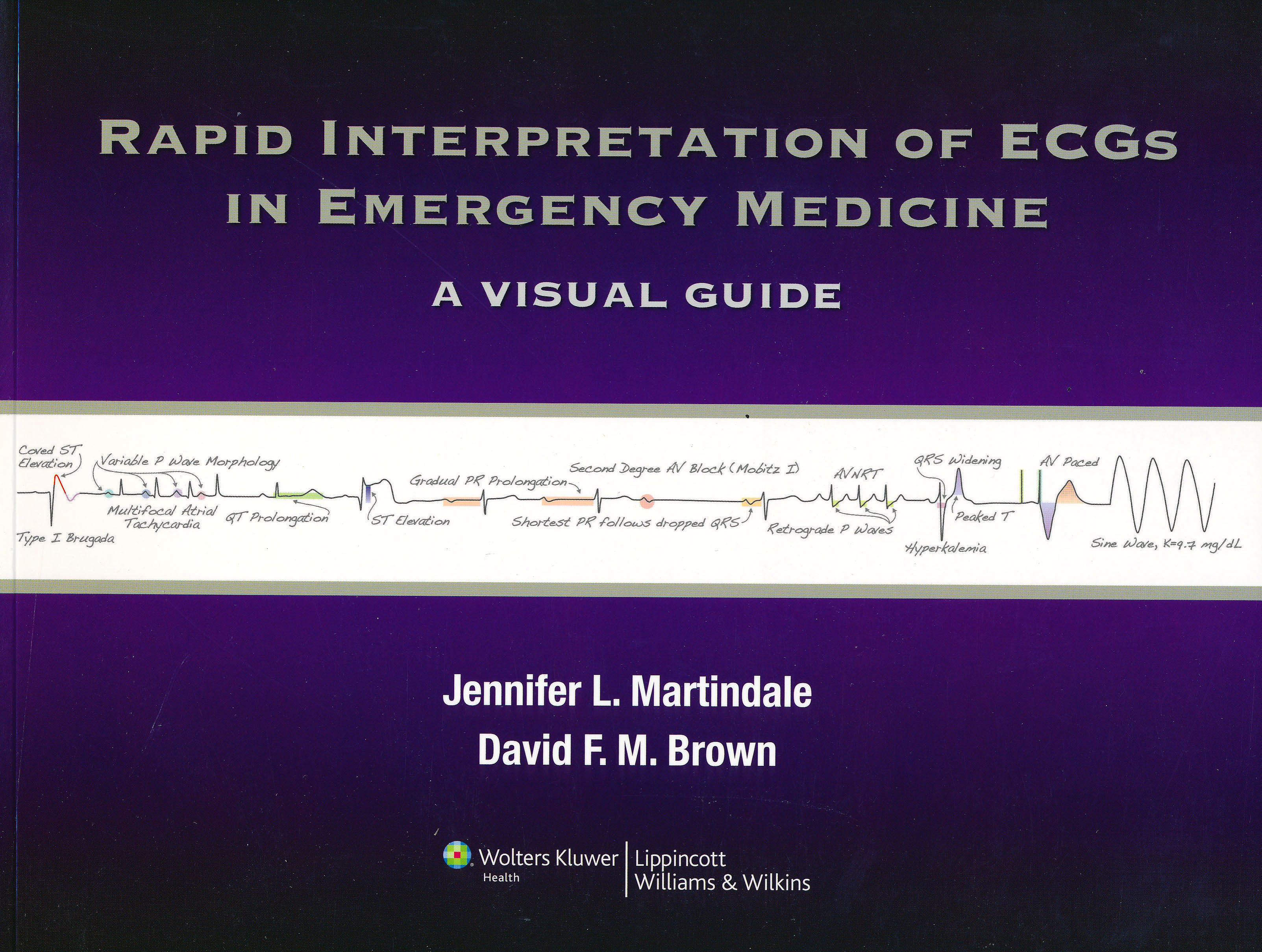 Portada del libro 9781451128376 Rapid Interpretation of Ecgs in Emergency Medicine. a Visual Guide