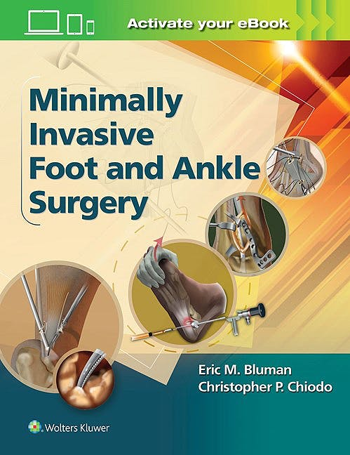 Portada del libro 9781451131611 Minimally Invasive Foot and Ankle Surgery