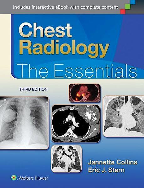 Portada del libro 9781451144482 Chest Radiology. the Essentials