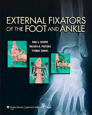 Portada del libro 9781451171822 External Fixators of the Foot and Ankle