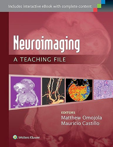 Portada del libro 9781451173284 Neuroimaging. a Teaching File