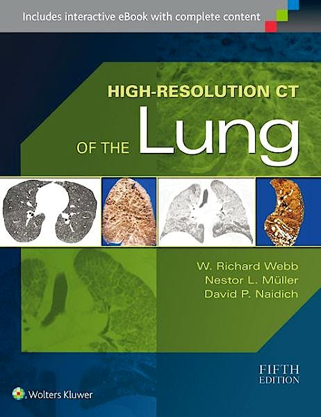 Portada del libro 9781451176018 High-Resolution Ct of the Lung