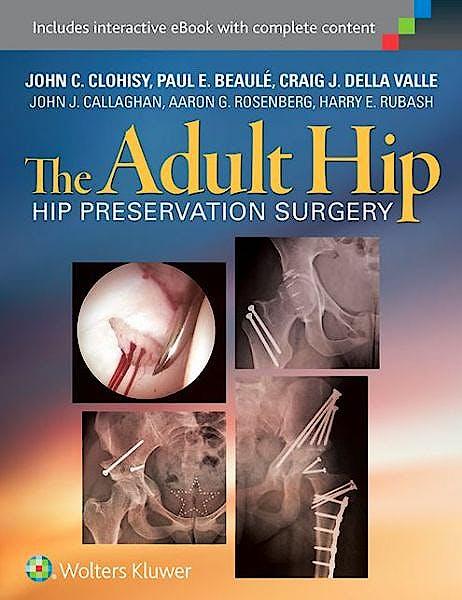 Portada del libro 9781451183931 The Adult Hip. Hip Preservation Surgery